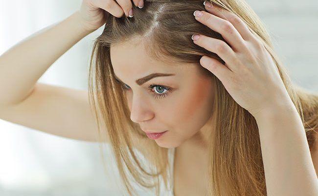 Выпадение волос причины